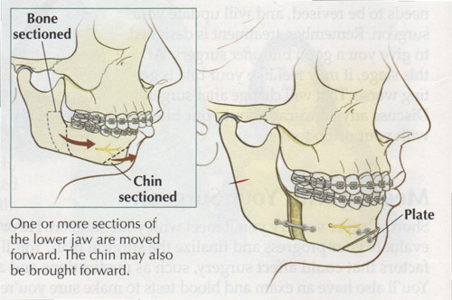 Magnificent Mouth Wired Shut Band Gallery - Electrical Diagram Ideas ...
