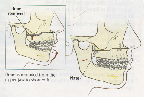 Beautiful Wired Jaw Diet Education Mold - Electrical Diagram Ideas ...